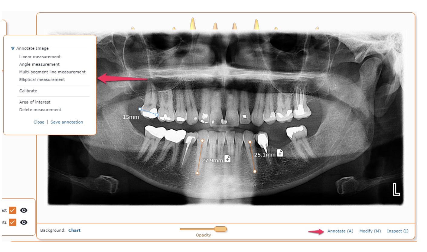 When accessing information in a radiograph or intraoral camera image, it is often necessary to relate measurements to the image that is displayed in front of you. This can assist in properly making decisions on courses of action to take with a patient.