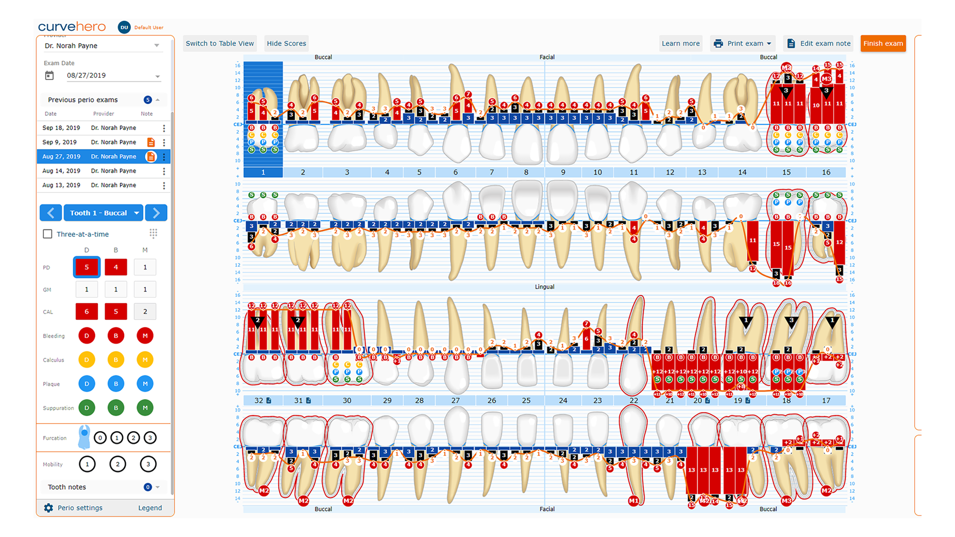 The Perio Charting graphical view provides detailed periodontal information at a glance.